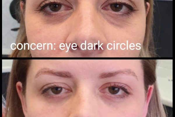 Dark circles abefore and after Rachael