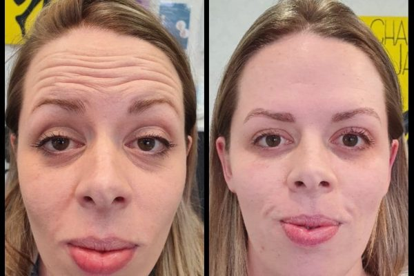 Rachel forehead lines before and after