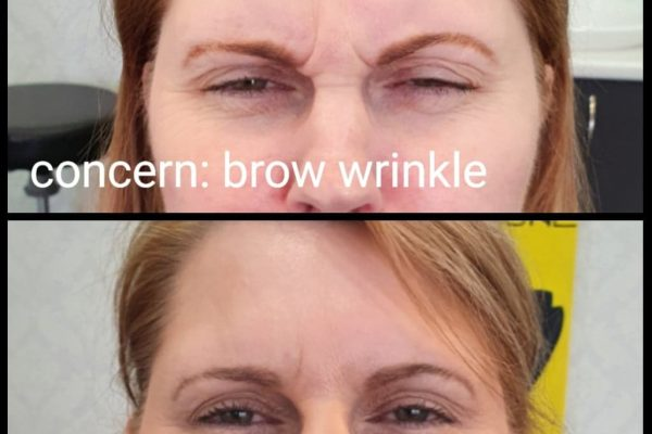 brow wrinkle before and after Jennie